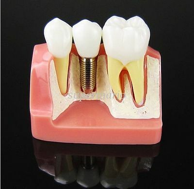 New Dental Demonstration Teeth Model Implant Analysis Crown Bridge For Dentist