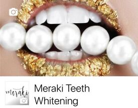 Meraki Teeth Whitening London