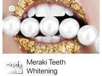 Meraki Teeth Whitening London