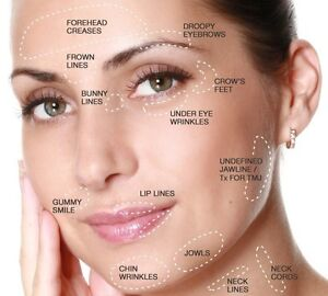 Cosmetic Injectable Services at Spoiled Rotten Cosmetic Clinic  Kitchener / Waterloo Kitchener Area image 1