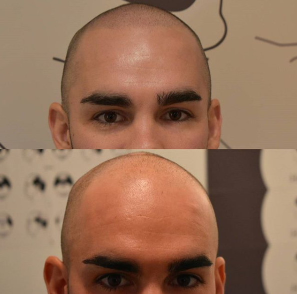 Bald Men Are Getting Head Tattoos Cosmetic Fill In Patches For Some