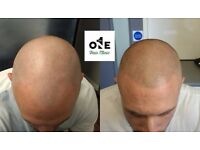 No 1 Hair Clinic / Hair Loss Treatment SMP Micropigmentation for Men and Women / South Wales Area