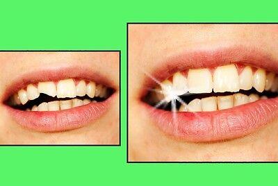 Provisorischer Zahnersatz Granulat Zahn Reparatur Tooth 200 St dent