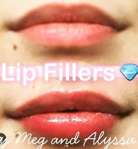 TOP BEAUTY AGENCY: Lipfiller/Hair Extension/ Microblading/ Botox