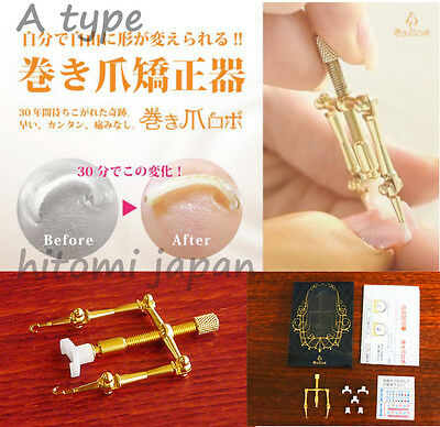 Makizume Robo A type Ingrown Toenail Fix Nail shape straightener JAPAN Authentic