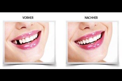 2x Provisorischer Zahnersatz Zahnprothese     auch für gebrochene Zahnfüllung™️