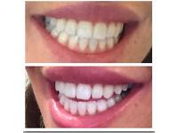 Prestige teeth whitening service