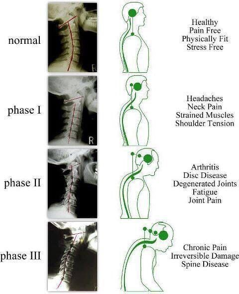 Sport Massage for your posture /pain /injury , free postural assessment!