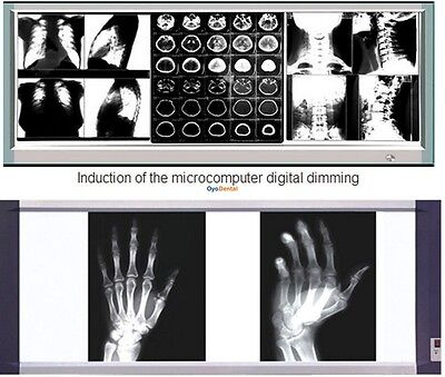 Ultra-thin X Ray Film Viewer Medical Diagnostic Led Illuminator View Box 1100h