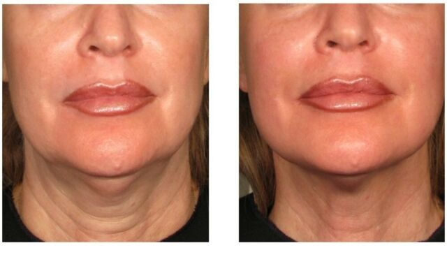 HiFu Non Surgical Face/ Body Lift (Hi Intensity Focused