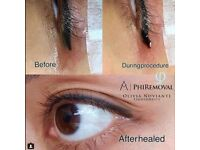 EyeLiner / Eye liner PMU Tattoo Removal - Free first session