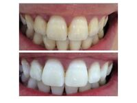 x7 Crest 3D Luxe Teeth Whiteing Strips