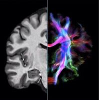 MRI study volunteers needed for a speech research