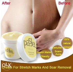 Miracle stretch mark cream ( new)