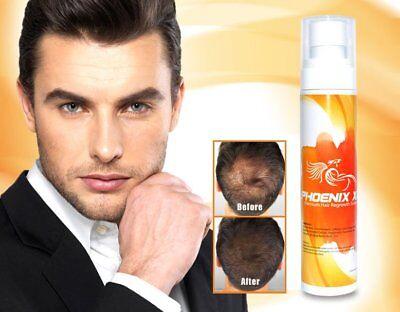 Dht Haarwachstum (Saw Palmetto Ginseng Ingwer 12 Kräuter Haarausfall Wachstum DHT Blocker Serum)