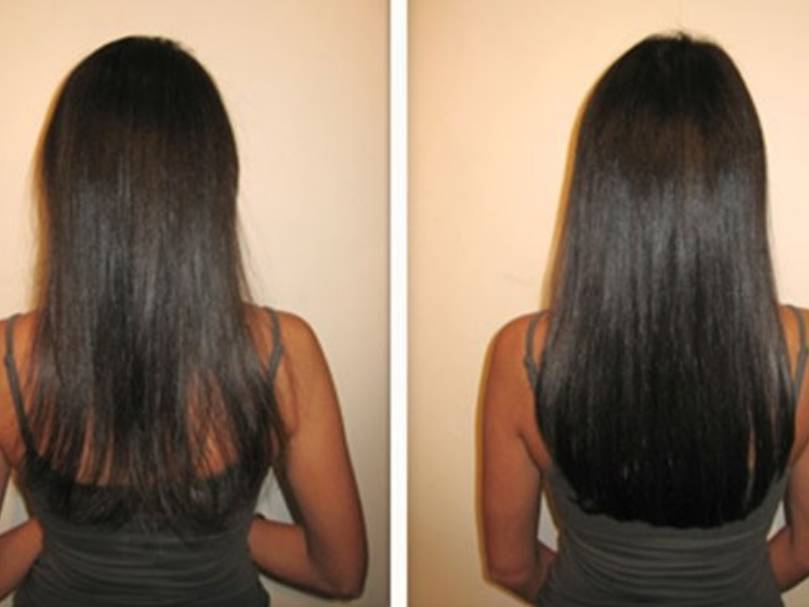 Thining hair? No problem. Skin weft tape in hair