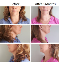 **FAT FREEZING** Ditch Your Double Chin - Buy One, Get One FREE!