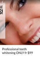 PROFESSIONAL TEETH  WHITENING  fr ONLY  99