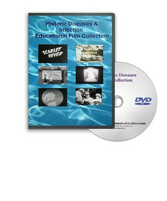 Classic Infectious Diseases DVD Polio Influenza VD Salmonella Ulcers A203