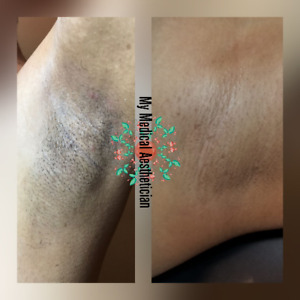 ☆☆☆° Laser Hair Removal °☆☆☆