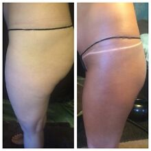 Lindy s House of Tanning and Hair removal Pearcedale Casey Area Preview