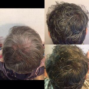 Hair Loss Alternative Scalp Micropigmentation Edmonton Edmonton Area image 2