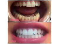 Laser Teeth Whitening - Guaranteed Results or Money Back
