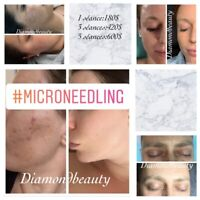 Cils/Blanchiment Dentaire/Microneedling a boisbriand