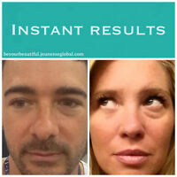 Have under eye imperfections, scars or fine lines?