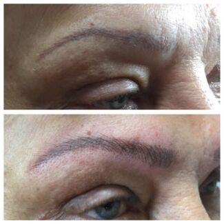 Cosmetic tattooing and beauty