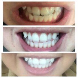 Whitening toothpaste