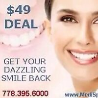 TEETH WHITENING DEALS VANCOUVER $49