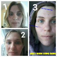 Bad Acne, cystic acne, scars, burns, Ezcem and skin conditions!!