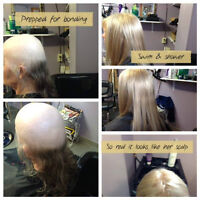 Hair thinning problems? Solutions in Sudbury for men and women