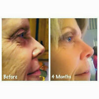 Younger, Healthier & Firmer Skin Right at Home !!