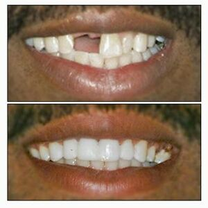 TEMPORARY TOOTH REPAIR or REPLACE KIT DIY makes 25-30 teeth *No Adhesive needed!