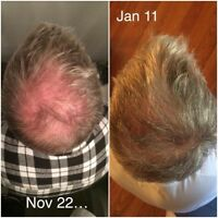 Hair care / thinning hair / home business opportunity