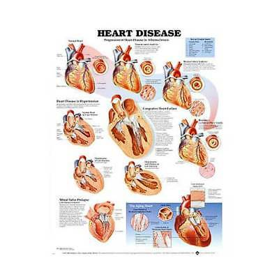 Heart Disease Cardiology Anatomy Poster Anatomical Chart Company