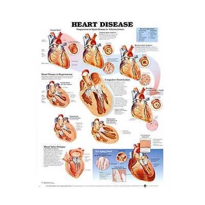 Heart Disease Cardiology Anatomy Poster Anatomical Chart Company