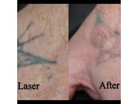 Tattoo Removal from £20