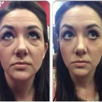 Look younger in 2 minutes!