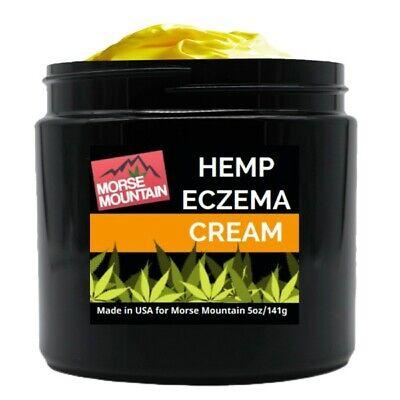 - PSORIASIS/ ECZEMA SOOTHING CREAM 5OZ. –Rosacea, Dermatitis and Shingles