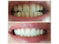 Mobile Teeth Whitening Clinic