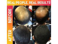 Male and female hair loss concealers