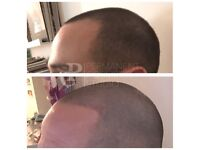 BALD NO MORE - SCALP MICROPIGMENTATION - NON INVASIVE HAIR LOSS SOLUTION - SPECIAL OFFER