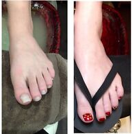 Clinical Spa pedicure, Feet keeping you in pain?