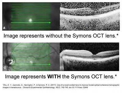 Ocular Symons Oct Image Enhancing Lens 20mm Osie-20
