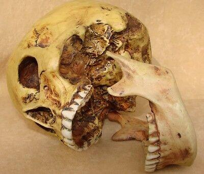 Set Anatomieschädel mit Unterkiefer Totenkopf Anatomie Schädel Abguss TOP