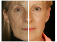 REDENSITY 1 - INJECTABLE COSMETIC TREATMENT