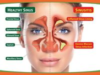 SINUS PROBLEMS NO MORE NO SIDE EFFECTS NO PILLS